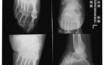 Disposing of X-Rays – Medical Destruction Services
